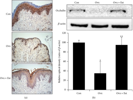 (a) Immunohistochemistry of occludin in vaginal tissue from animals of the control (Con), ovariectomy (Ovx), and ovariectomy plus 17β-estradiol treatment (Ovx + Est) groups. Occludin was expressed in the intermediate and basal epithelium. (b) Immunoblotting of occludin in the rat vagina. The lower panels denote the means ± standard error of 6 experiments for each condition determined by densitometry relative to beta-actin. ∗P < 0.05 versus control. ∗∗P < 0.05 versus Ovx.