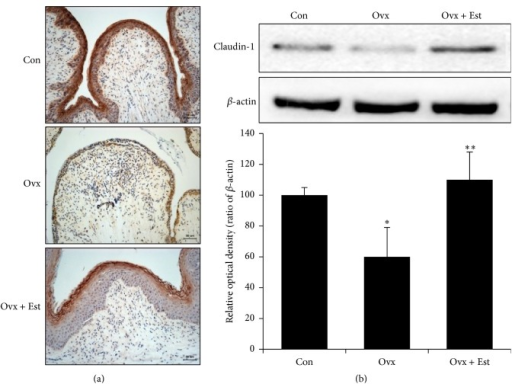 (a) Immunohistochemistry of claudin-1 in vaginal tissue from animals of the control (Con), ovariectomy (Ovx), and ovariectomy plus 17β-estradiol treatment (Ovx + Est) groups. Claudin-1 was most intense in the superficial layer of the vaginal epithelium. (b) Immunoblotting of claudin-1 in the rat vagina. The lower panels denote the means ± standard error of 6 experiments for each condition determined by densitometry relative to beta-actin. ∗P < 0.05 versus control. ∗∗P < 0.05 versus Ovx.