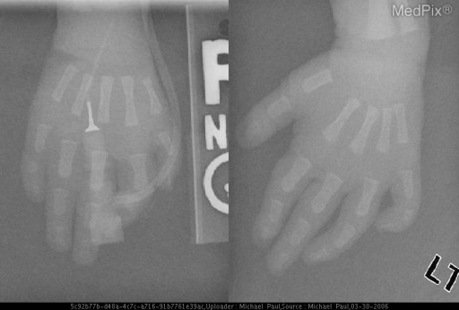 Hypoplastic right 1st metacarpal.