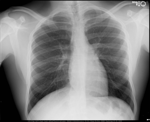 Normal appearing frontal CXR.