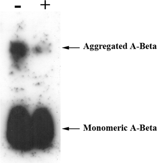 Influence of TTR in A-Beta aggregates.A-Beta alone was incubated for 3 hours at 37°C to form aggregates and then further incubated with or without TTR for another 3 hours. Analysis was done by western blot following separation under denaturing conditions. Results indicated that in preparations of A-Beta incubated with TTR, both bands corresponding to A-Beta monomer and to the higher molecular form presented decreased intensities, as compared to the same bands in the A-Beta alone preparation.