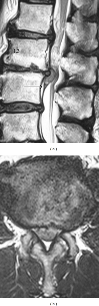 Preoperative MRI of the lumbar spine: (a) sagittal plane T2-weighted image. (b) Axial plane T2-weighted image. The ventral dural line was divided such that disc herniation existed between the two lines (black arrow) (a). The border of cauda equina and disc herniation was unclear (b).