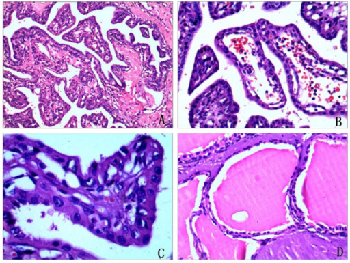 Histopathologic characterization of endolymphatic sac tumor. A. Histologic sections showed a papillary architecture (H&E, 100×). B. The stroma of the papillary fronds was richly vascularized(H&E, 200×). C. The papillary structures were lined by a single layer of flattened cuboidal-to-columnar cells. There were minimal cellular pleomorphism and rare mitotic activity (H&E, 400×). D. There were cystic glandular spaces filled with colloid-like material which was remarkably similar to thyroid tissue (H&E, 200×).
