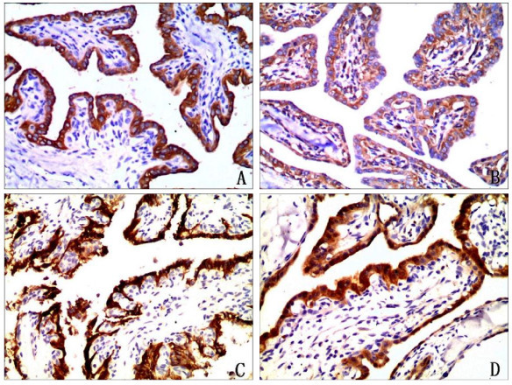 Immunophenotype of endolymphatic sac tumor. A. The tumor cells showed positive reactivity with cytokeratin (Pan) (immunostaining, 400×). B. The tumor cells were positive to vimentin(immunostaining, 400×). C. The tumor cells exhibited CD56 expression(immunostaining, 400×).D. The tumor cells exhibited NSE expression (immunostaining, 400×).