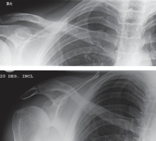 AP (top) and 20-degree (bottom) radiographs of the clavicle 6 months after surgery, showing union of the clavicle fracture.