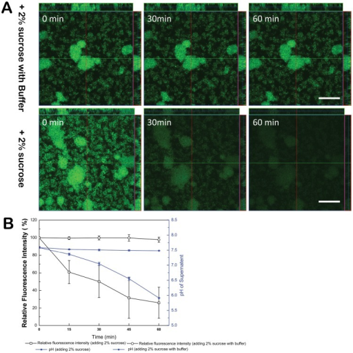 Temporal and spatial distribution of pHluorin fluorescent signals within S. mutans biofilms.(A) Dynamic analysis of surface-expressed pHluorin fluorescence signal changes in biofilm after addition of 2% sucrose under phosphate buffered condition (pH 7.5) (upper panel) and unbuffered condition (lower panel), respectively. (B) pHluorin signals after addition of 2% sucrose under buffered or unbuffered conditions is quantified. The proportion was calculated as the amount of pHluorin signal at each time point vs. the initial signal intensity (0 min). The plots show the average of three duplicate tests. The corresponding changes in medium pH are also included.