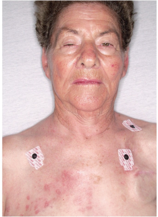 Photograph of patient showing Herpes zoster rash in T1–T2 distribution with associated right sided ptosis and meiosis.