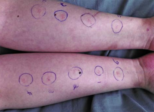 Results of skin prick tests performed