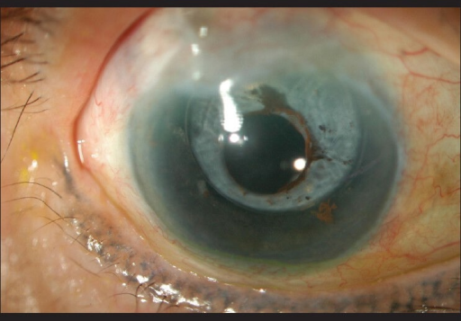 OD showing the complete absence of brown iris with intact opacified capsular bag and intraocular lens (optic and haptic) and remnant iris pigments stuck to capsulotomy margin