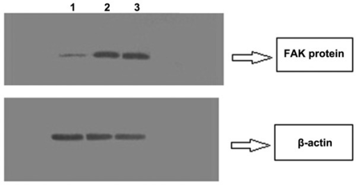 Western blot analysis of FAK and β-actin protein expression in each group. FAK, focal adhesion kinase; 1, interference group; 2, transfected negative control group; 3, untreated group.
