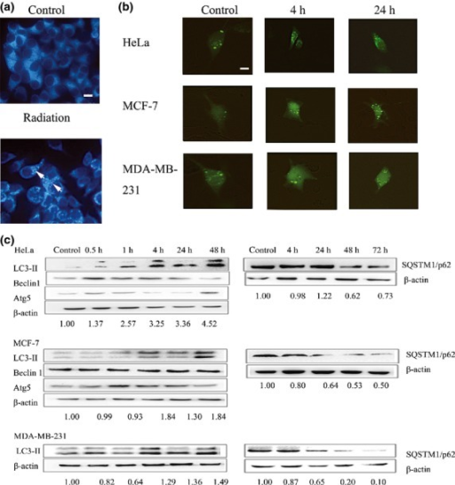 Autophagy induced by carbon ions with linear energy transfer of 75 keV/μm and 2 Gy in HeLa, MCF-7, and MDA-MB-231 cells at morphological and molecular levels. (a) HeLa cells were stained with monodansylcadaverine at 24 h post-irradiation, then the cells were observed using fluorescence microscopy (arrowheads). (b) GFP-LC3 staining patterns were analyzed by fluorescence microscopy. (a,b) Scale bars = 10 μm. (c) LC3-II conversion and expression of sequestosome 1 (SQSTM1)/p62, Beclin 1, and Atg5 proteins in tumor cells following exposure to high-LET radiation; the relative level of LC3-II in comparison to β-actin is indicated below each immunoblot image.
