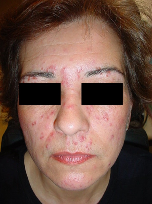 Papulo-erythematous lesions, similar to those presented in acne rosacea