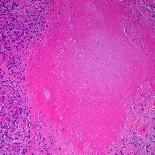 Cutaneous biopsy, H–E stain, 200×. Caseificant granuloma with cells arranged in a palisade