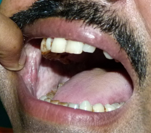 Blanching of buccal mucosa in oral submucous fibrosis ...