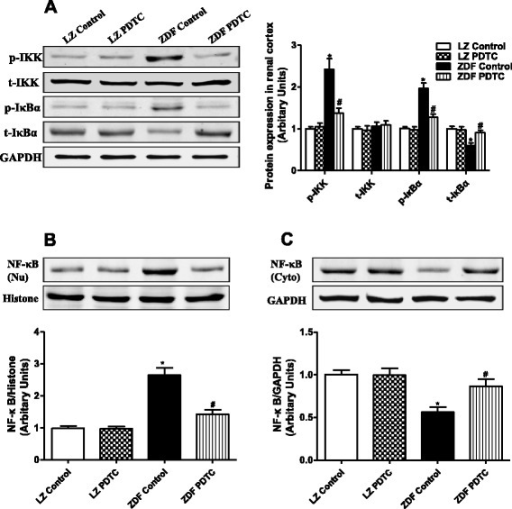 Effect of PDTC on NF-κB signaling in the renal cortex of LZ and ZDF rats. LZ or ZDF rats were treated with PDTC (150 mg · kg body wt-1 · day-1) or vehicle for 4 weeks. a: Phosphorylation and expression of IKK and IκBα were determined by Western blot, and data were normalized using GAPDH expression. Nuclear and cytosol protein were prepared from the renal cortex and the expression of NF-κB in nuclear (Nu) (b) and cytosol (Cyto) (c) fractions were determined by Western blot. *P <0.05 vs LZ control; #P < 0.05 vs ZDF control (n = 5)