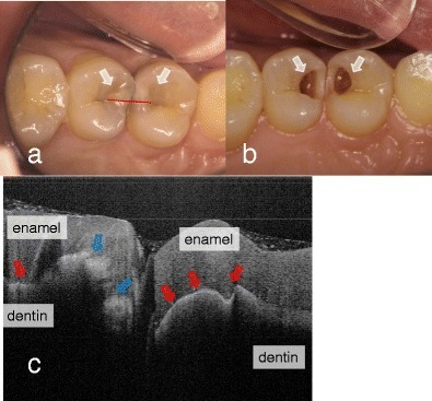 "Dental caries in first and second premolars. a Occlusal view before the surgical treatment. Underlying dark shadows were visually observed at the first and second premolars (arrow). SS-OCT observation was performed along red line. b Occlusal view during the cavity preparation. Presence of deep lesions with softened dentin was obvious (white arrow). c SS-OCT image at red line in (a) before cavity preparation. Bright zone indicates the increased light scattering in porous demineralized tissue (blue arrow). A strong reflection penetrating along the DEJ indicates the lesion is ""cavitated"" (red arrow)"