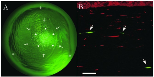 Fluorescence micrographs of rabbit cornea after treatment with US and MB. (A) Asterisks indicate the corneal margin. Arrows indicate where plasmid and MBs were injected. Arrowheads indicate exactly where the US probe was placed. GFP-positive cells were observed exclusively where US was applied. (B) Fluorescence microscopic examination showed that GFP was present in spindle-shaped cells in the targeted regions of the corneal stroma. The image was taken from Sonoda et al (9) (scale bar, 10 µm). US, ultrasound; MB, microbubble; GFP, green fluorescence protein.