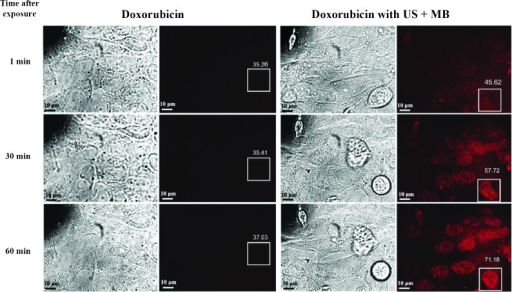 Intracellular fluorescent microscopic images of cells treated with doxorubicin alone or with doxorubicin + US + MB. As early as 1 min after sonoporation, cells treated with doxorubicin + US + MB showed increased intracellular fluorescence compared with cells exposed to doxorubicin alone (35.26 vs. 45.62). This effect increased further at 60 min, where the mean intensity of fluorescence was 37.03 in control cells versus 71.18 in cells treated with doxorubicin + US + MB. Compared with the early fluorescence observed in cells exposed to US + MB, cells treated with doxorubicin alone showed only trace intracellular fluorescence at 60 min. Boxes represent ROIs for measuring levels of fluorescence, and values indicate mean intensity of fluorescence within the ROI. Scale bars, 10 µm. Image taken from Lee et al (71). ROI, region of interest; US, ultrasound; MB, microbubble.