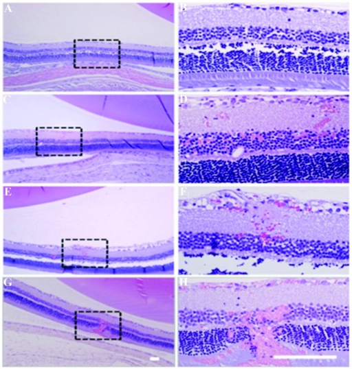 Micrographs of hematoxylin- and eosin-stained sections from each experimental group. Images on the right are high-magnification views of the boxed regions shown on the left. (A and B) Control eye without sonication; (C and D) 0.81 MPa; (E and F) 0.88 MPa; (G and H) 1.1 MPa. At 0.81 and 0.88 MPa, the retina in the sonicated region appeared to be generally unaffected except for a small number of small clusters of extravasated erythrocytes in the nuclear layers of the retina. More extensive damage was observed after sonication at 1.1 MPa. Scale bars, 100 mm. Image taken from Park et al (76).