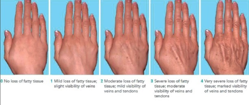 The validated 5-point MAS for assessment of age-related skin changes of the hands. Reproduced with permission from Merz Pharmaceuticals GmbH