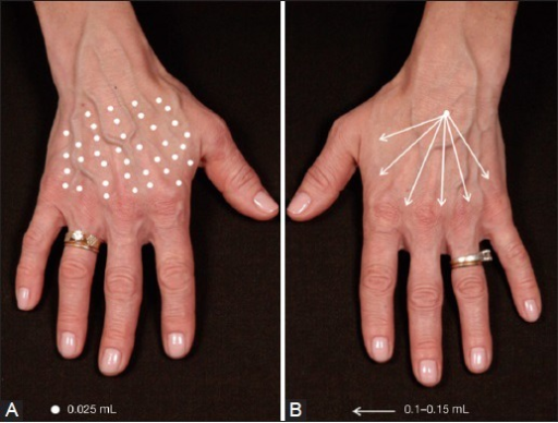 Injection techniques used during the study. (A) 1.0 mL of Radiesse®-lidocaine injected into one hand using multiple injection sites using a needle (N hand); (B) 1.0 mL of Radiesse®-lidocaine injected into one hand using a fan-like distribution pattern with a blunt cannula (C hand). Typically, 6-8 distribution points (arrows) are used per hand
