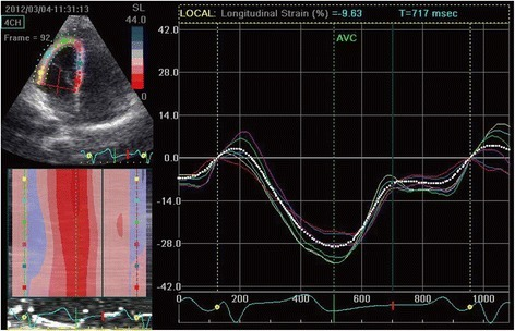 Right ventricular peak systolic longitudinal strain of the control group