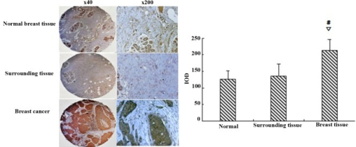 Immunohistochemistry analyses reveal the expression of serum- and glucocorticoid-regulated protein kinase 3 (SGK3) in breast tissues. SGK3 levels were significantly higher in breast cancer specimens; #∇P<0.01. IOD, integral optical density.