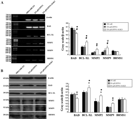 (A) Effect of serum- and glucocorticoid-regulated protein kinase 3 (SGK3) overexpression on bcl-xl, bad, mmp2, mmp9 and brms1 mRNA levels (reverse transcription-polymerase chain reaction); *♦P<0.05, #∇P<0.01. (B) Effect of SGK3 overexpression on Bcl-xL, BAD, MMP2, MMP9 and BRMS1 levels (western blot analysis); *♦P<0.05, #∇P<0.01.