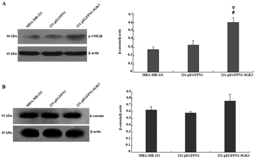 (A) Effect of serum- and glucocorticoid-regulated protein kinase 3 (SGK3) overexpression on GSK3β phosphorylation; #∇P<0.01. (B) Effect of SGK3 overexpression on β-catenin phosphorylation. # and * indicate comparison between groups SGK3 and 231; ∇ and ♦ indicate comparison between groups SGK3 and N1.