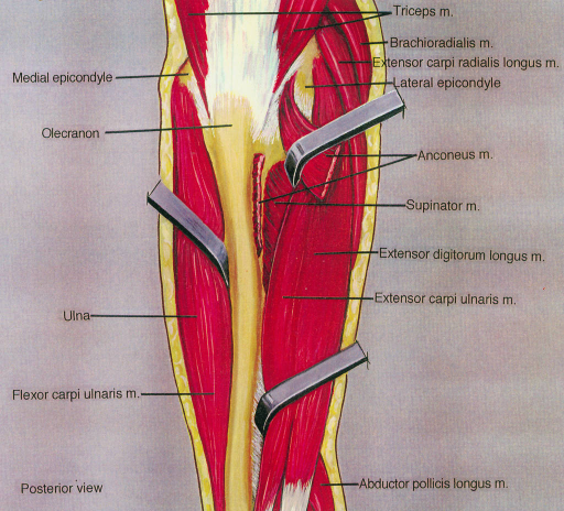 triceps muscle; brachioradialis muscle; extensor carpi radialis longus muscle; lateral epicondyle; anconeus muscle; supinator muscle; extensor digitorum longus muscle; extensor carpi ulnaris muscle; abductor pollicis longus muscle; flexor carpi ulnaris muscle; ulna; olecranon; medial epicondyle