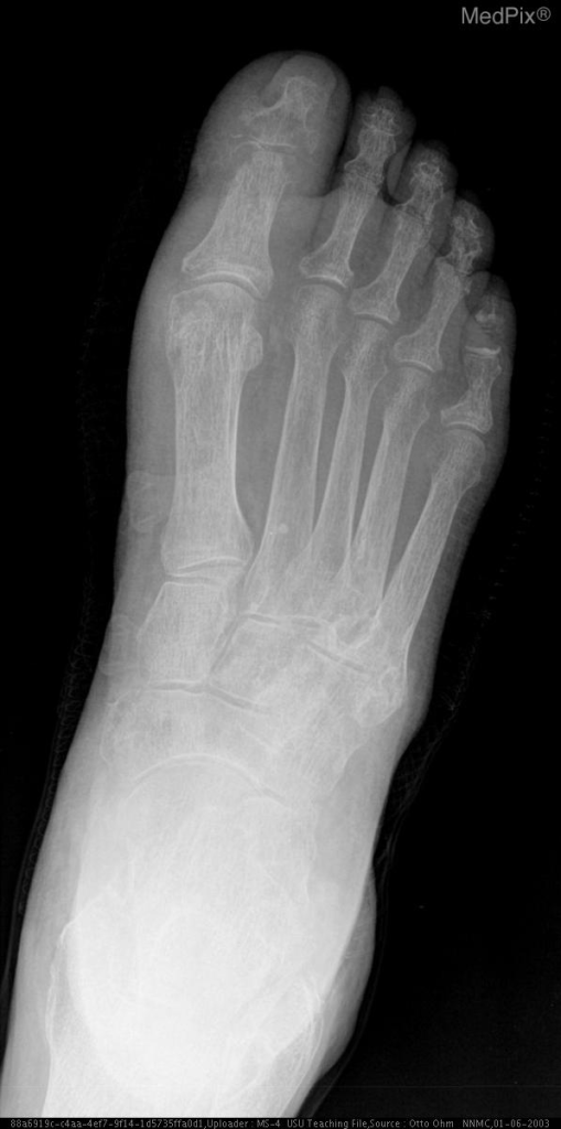 AP and oblique radiograph of left foot shows erosions at the first metatarsophalangeal joint and soft tissue swelling and osteopenia of the bones and vascular calcifications.