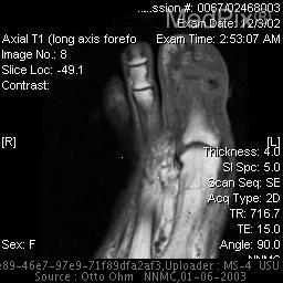 Axial T1 (long axis to forefoot) MR image shows low-signal-intensity inflammatory changes in bone marrow and the soft tissues with destruction of the cortex.