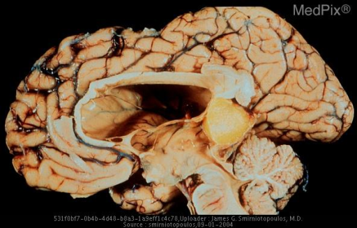 There is a sharply demarcated yellow mass behind the 3rd ventricle and midbrain - in the region of the pineal gland and quadrigeminal plate cistern.