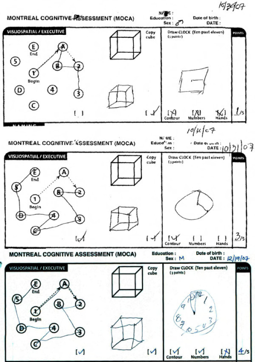 Rapid and sustained improvement in Visuospatial/Executive function following perispinal etanercept documented by the Montreal Cognitive Assessment. The top panel depicts the first three tasks from the Montreal Cognitive Assessment completed by the patient one day prior to perispinal etanercept administration. The middle panel depicts the patient's results two hours after perispinal etanercept administration, showing correct completion of the alternating trail making task documenting improved executive function, and improvement in depiction of a clock face. The bottom panel depicts the patient's results at seven weeks, fourteen days after receiving his previous dose of perispinal etanercept, showing further improvement in his drawing of the clock face, with numerals added, and persistence in improvement in completion of the trail making task. (The instruction for completion of the alternating trail making task are as follows: Please draw a line, going from a number to a letter in ascending order. Begin here [point to (1)] and draw a line from 1 then to A then to 2 and so on. End here [point to (E)]).