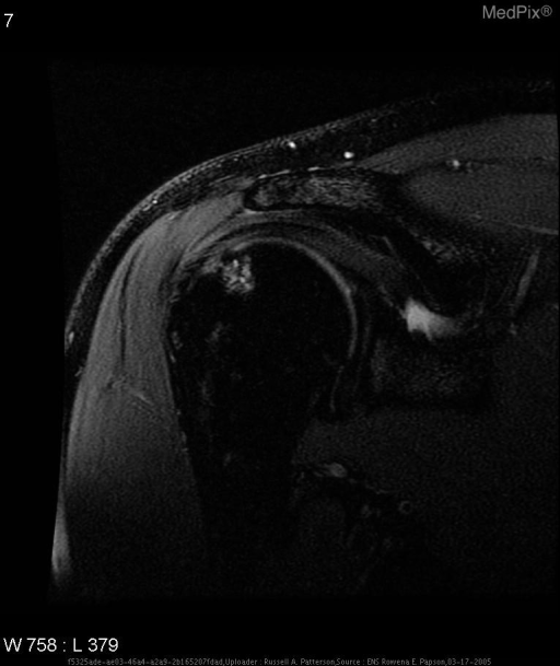 T2-weighted with fat sat sagittal oblique MR image of the right shoudler shows the high-signal-intensity edema and subchondral cyst formation in humeral head beneath the Hill-Sach's fracture.