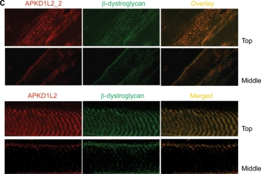 Co-localization of PKD1L2 and FASN in skeletal muscle. (A) Confocal microscopic analysis of fresh-frozen skeletal muscle sections from wild-type mice immunostained with APKD1L2_1 and gAFASN antibodies. Top panel, a cross-section of muscle showing PKD1L2 and FASN co-localization at the membrane. Middle panel: a view of the surface of longitudinally sectioned fibres showing PKD1L2 and FASN with overlapping localizations to striations. Bottom panel: a deeper level of the same fibres showing PKD1L2 and FASN with overlapping localizations at the membrane. (B) For comparison, a view of the mid-level of a longitudinal fibre stained with dystrophin and α-actinin using the same conditions. Note that, in contrast to the bottom panel shown in (A), the Z-discs are stained here. (C) Top panel: superficial ('Top') and middle views of longitudinal fibres showing PKD1L2 co-localization with the costameric protein β-dystroglycan. Bottom panel: a close-up view of top and middle levels of a single fibre. Scale bar: 25 μm.