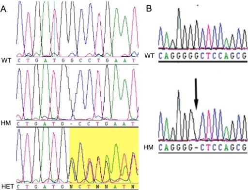 Electropherograms of the mutations detected in Protocadherin-21 (PCDH21). Panel A illustrates the index c.338delG mutation in family 1; the wild-type (WT) sequence is displayed on the top row. The middle row shows the proband in family 1 (IV-2) with a homozygous (HM) c.338delG change, illustrated with a dash for the missing nucleotide when aligned with the wildtype sequence. The bottom row displays an unaffected parent of family 1 (III-3) with the c.338delG change in the heterozygous state (Het): the latter section of the heterozygous electropherogram shows two superimposed sequences due to the synchronous addition of nucleotides due to two distinct DNA templates derived from the wild type and the shorter mutant alleles of the heterozygote. Panel B illustrates the second mutation that was identified in PCDH21, in family 2. The top row displays the control individual with the wildtype (WT) allele; while the bottom row displays the affected proband (II-1) with a homozygous (HM) c.1463delG variant.