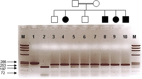 Co-segregation study of members of family 1 using the HaeIII restriction enzyme. Lane 1 is an undigested PCR product (286 bp). Lane 2 is a completely digested PCR product representing the wild-type allele (two products 197 and 56 bp). Affected individuals (lanes 4, 8, 9, and 10) show the homozygous mutant allele (one product 253 bp). Unaffected individuals, carriers (lanes 3, 5, 6, and 7) display the mutant allele in a heterozygous state (two products 253 and 197 bp). M represents the ϕX174RF DNA HaeIII marker.