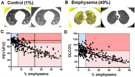 Correlation between PFTs and % emphysema in ever-smokers. Representative quantitative CT images of lung (left images) are matched to conventional CT images of the same lung (right images) from individuals without (A) and with (B) emphysema. Yellow background within lung margins (left images) was quantified as a percent of whole lung to determine the percent emphysema (1% and 40%, respectively; see Methods). (C) FEV1/FVC ratio was plotted against % emphysema, with regression lines in current (N = 133; solid line) and former (N = 91; dashed line) smokers. P < 0.0001; r = −0.7136 and r = −0.7574 Goodness of Fit for current and former smokers respectively. The lines are similar in slope (P = 0.78) and elevation (P = 0.17). The graph is divided into quadrants based on cutoff values for FEV1/FVC (70%) and % emphysema (7%). Additional dashed lines identify FEV1/FVC 78% (horizontal) and 23% emphysema (vertical). (D) DLCO% predicted plotted against % emphysema with regression lines in current (N =126; solid line) and former (N =89; dotted line) smokers. P < 0.0001; r = −0.4690 and r = −0.7074 Goodness of Fit for current and former smokers respectively. The lines are significantly different in elevation (p = 0.0003) but not slope (P = 0.79). The graph is separated into quadrants based on cutoffs for DLCO% (75%) and % emphysema (7%).