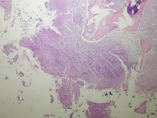 Tissue sections showing a glioblastoma multiforme with bone invasion (hematoxylin-eosin stain, ×400)