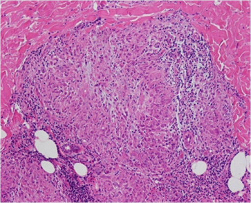 Histopathological section of skin biopsy. Nonnecrotizing granuloma with several multinucleated giant cells and epitheliod histiocytes can be seen. Hematoxylin-eosin ×250.