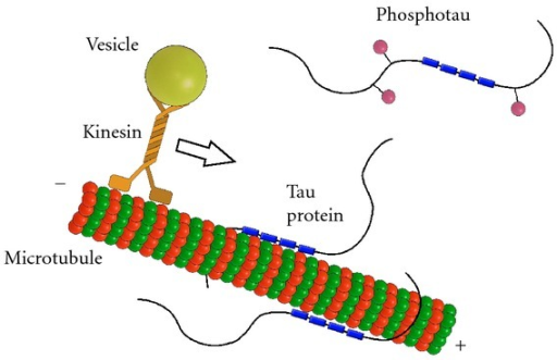 Normal function of tau protein. Tau protein stabilizes microtubules through four tubulin binding domains (blue boxes) in case of the longest isoform. Binding of tau protein to the microtubules is maintained in equilibrium by coordinated actions of kinases and phosphatases. The phosphorylation of tau (pink balls) regulates its activity to bind to microtubules and can affect axonal transport. Tau protein may inhibit the plus-end-directed transport of vesicles along microtubules by kinesin.