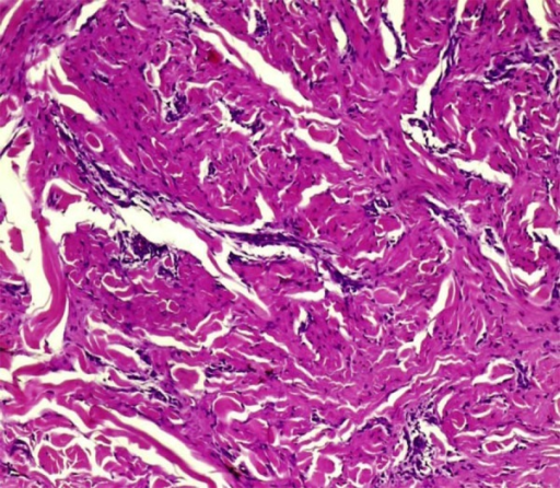Collagen trapping by the dermal fibrohistiocytic infiltrate (HEx40)
