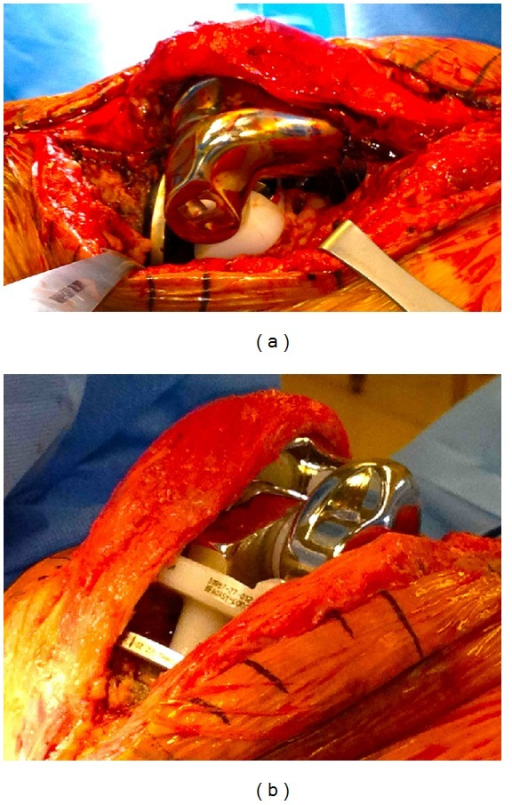 (a) Intraoperative findings illustrating dislocation of rotating hinge stem. (b) Intraoperative opening of the flexion gap causing dislocation.