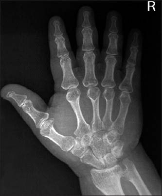 Hand-wrist radiograph showing trident hand configuration