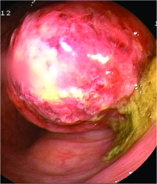 Colonoscopy image revealing a 4×5-cm intraluminal spherical mass, 60 cm above the anal verge, which prevented further progression of the endoscope. The mass was covered by a 2×3-cm superficial mucosal erosion, indicating the presence of a malignant gastrointestinal stromal tumor.