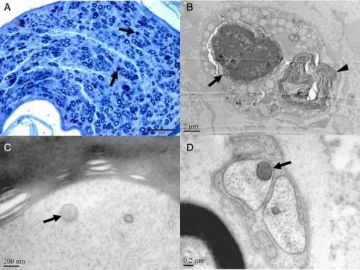 Demyelination, axonal degeneration and homogeneous staining of the mitochondria in neuropathy during the treatment of lamivudine/telbivudine. (A) Reduction of myelinated nerve fibres, axonal degeneration (arrow) in patient 1. (B) Axonal degeneration (arrow) and Wallerian degeneration (arrowhead) in patient 1 (electron microscope (EM), 8000×). Mitochondria with homogenised matrix (arrow) were observed in the myelinated axons in patient 5 (EM, 80 000×) (C), unmyelinated axons (arrow) in patient 1 (EM, 50 000×) (D).