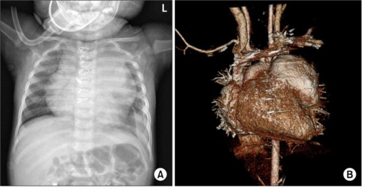 (A) Chest radiography revealed enlargement of the left upper cardiac border with left pleural effusion. (B) Computed tomography showed a right ventricular outflow tract pseudoaneurysm measuring 55×51×45 mm.