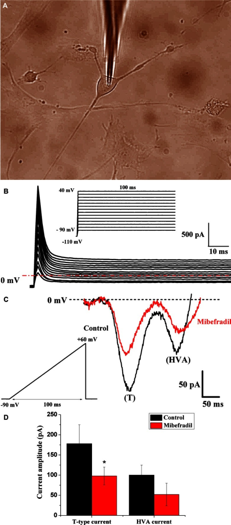 Electrophysiological activity recorded in TCs from non-pregnant myometrium. a TC visualized by transmitted light microscopy in phase-contrast illumination mode during patch-clamp recording. b TCs generated no detectable voltage-activated calcium currents when tested with a step depolarization protocol. The same protocol was applied on n = 12 TCs. Inset Step depolarization protocol of 100 ms duration from −90 to +40 mV incremented by 10-mV steps, from a holding potential of −110 mV. c Representative T-type calcium current and HVA current in a TC (black line) and the blocking effect of 1 μM mibefradil on Ca2+ currents (red line). Inset Ramp commands of 100 ms duration from −90 to +60 mV in voltage-clamp mode. d Current amplitude of T-type and HVA calcium currents in control and mibefradil exposure conditions expressed as mean ± SD (n = 4)