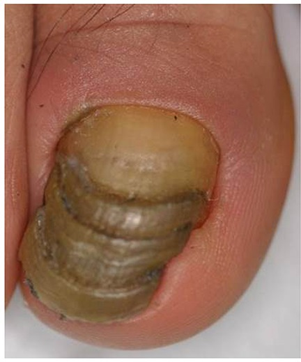 Great Toenail Dystrophy With Shrimp Nail, Malalignment